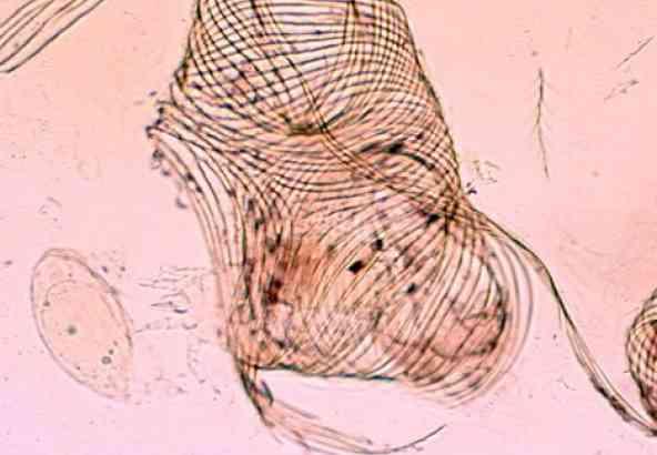 Stukje trachee van de bij met 2 tracheeënmijten in het larvalestadium. Als je goed kijkt, zie je in het stukje trachee een adult vrouwtje of mannetje van de tracheeënmijt zitten.